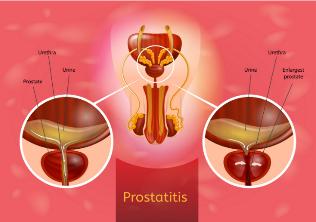 Tabletták a gyógynövényekre prostatitis Prostatitis és aloe