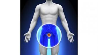 Krónikus prosztatitis Malysheva kezelése prostata adenoma mediano
