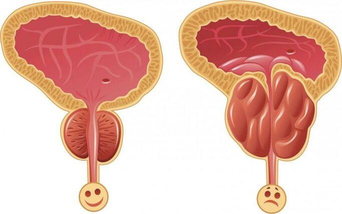 Prostatitis szindróma Az orvos meggyógyult a prosztatitist